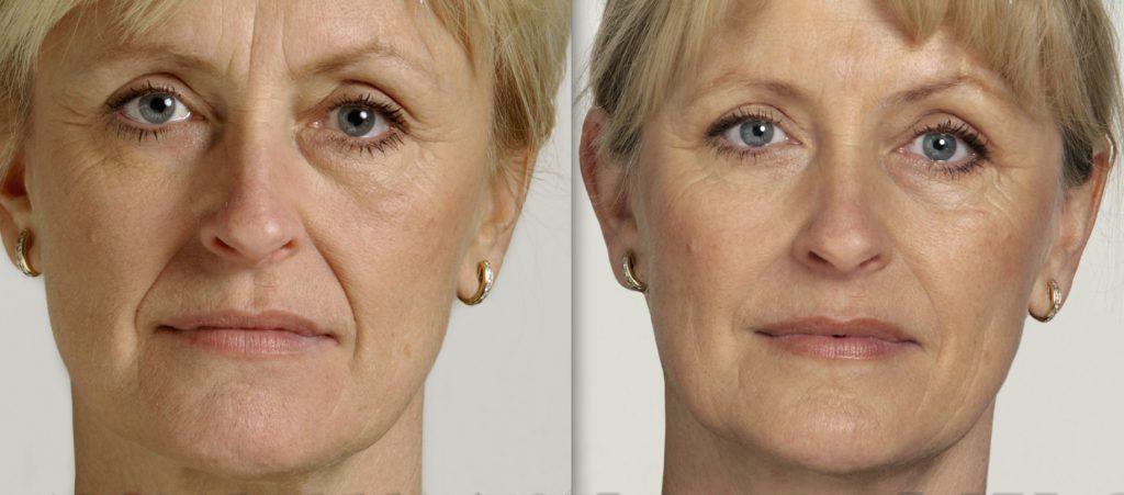 botox vs dermal fillers
