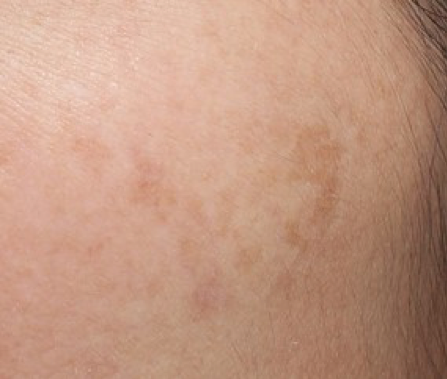different types of hyperpigmentation