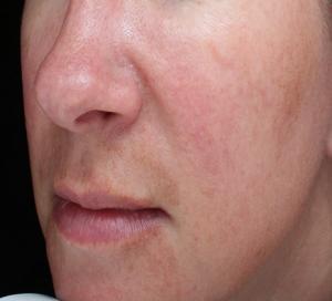 melasma type of hyperpigmentation