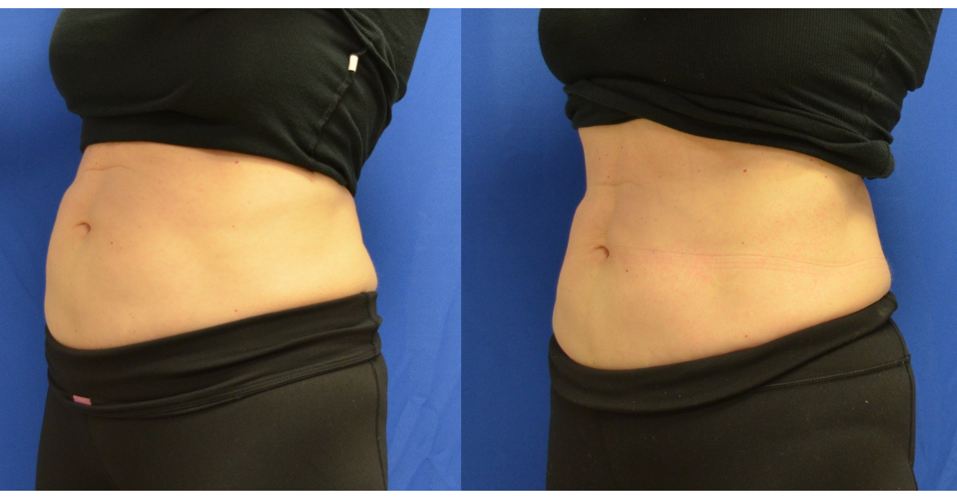 CoolTone body contouring patient testimonial