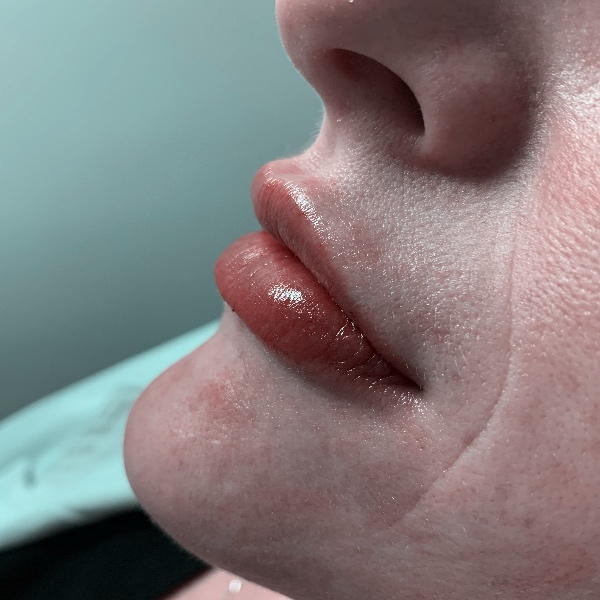 lips feature
