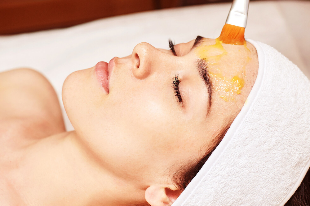 benefits of chemical peels