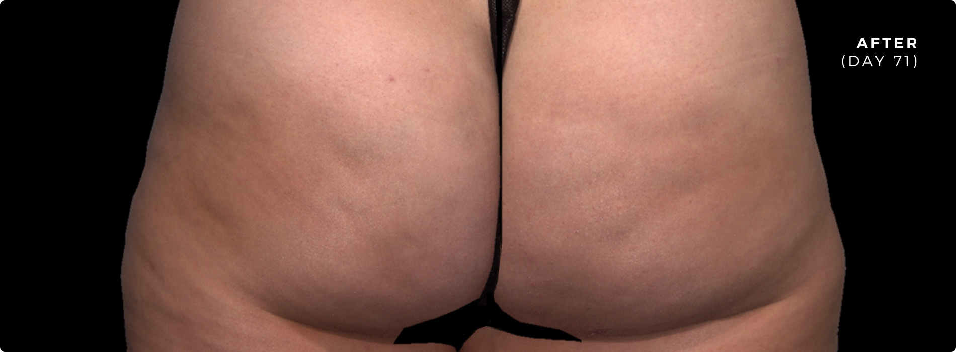 Cellulite Injections After