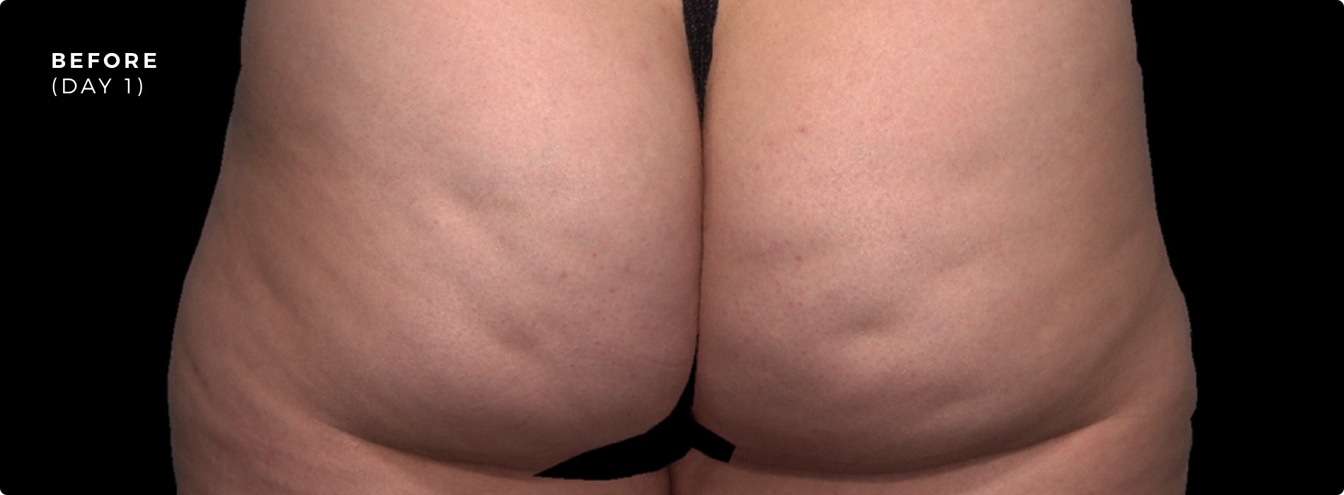 Cellulite Injections Before