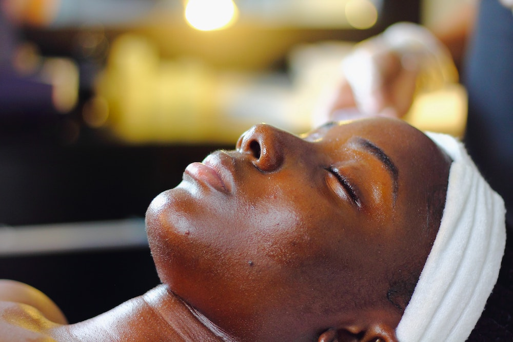 myths about chemical peels
